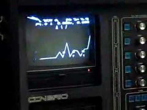 Con Brio ADS 200R Vintage Synthesizer